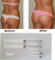 Hydrogel buttock injections kit -